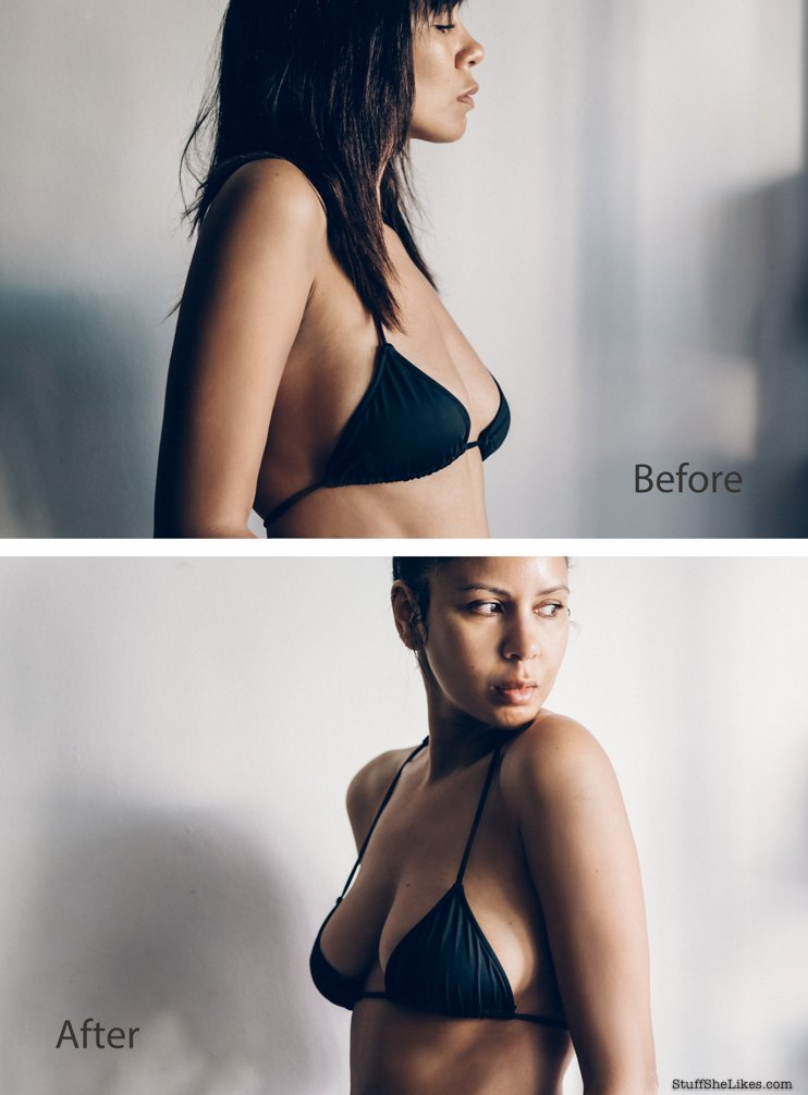 Plastic Surgery, Breast augmentaion, fat Transfer, Boobs, fat transfer to boobs, Beverly hill plastic surgery, Beauty Blogger, Fashion blogger